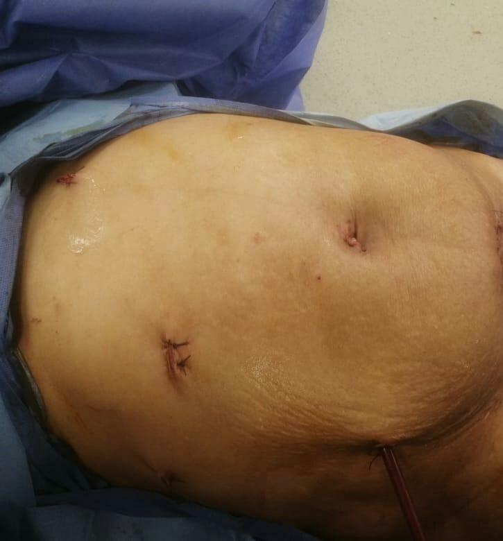 معهد جنوب مصر للأورام يسجل انجازاً جديداً فى جراحات أورام الكلى باستخدام منظار البطن الجراحي