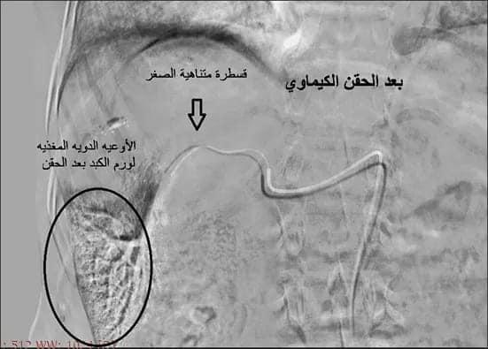 مستشفي سوهاج الجامعي تجري أول حالة قسطرة علاجية لأورام الكبد