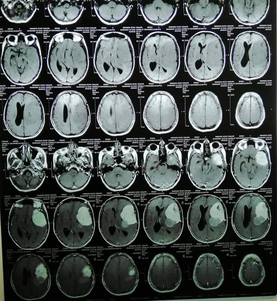 جامعة المنوفية تعلن عودة مريضة للحركة والكلام بعد إستئصال ورم بالمخ